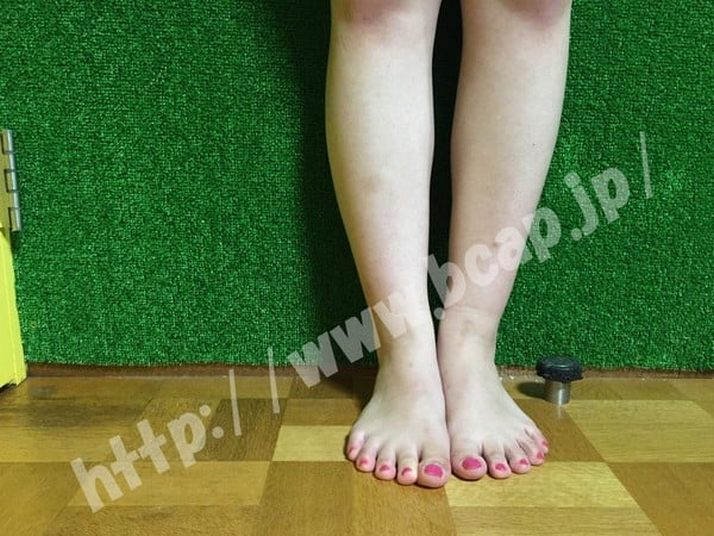 TAKANO式キャビボディ体験後の脚ふくらはぎ